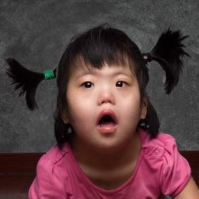 ZHAO JY   Medical Condition: Down Syndrome