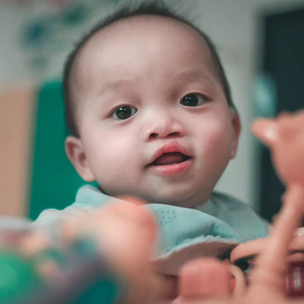 GAO FJ   Medical condition: cleft lip and palate