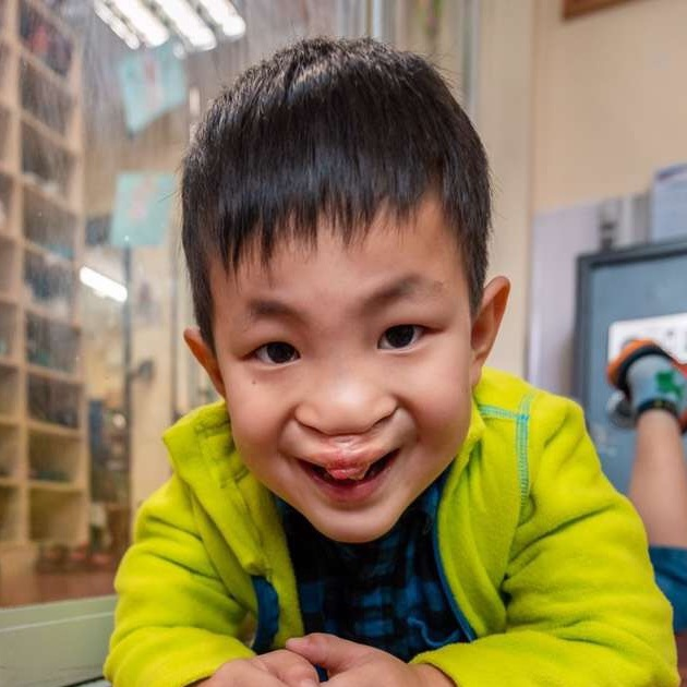 WU ZK   Medical Condition: Cleft Lip & Palate