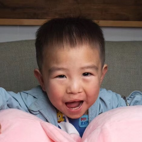 ZHAO YL   Medical Condition: Cleft Lip & Palate