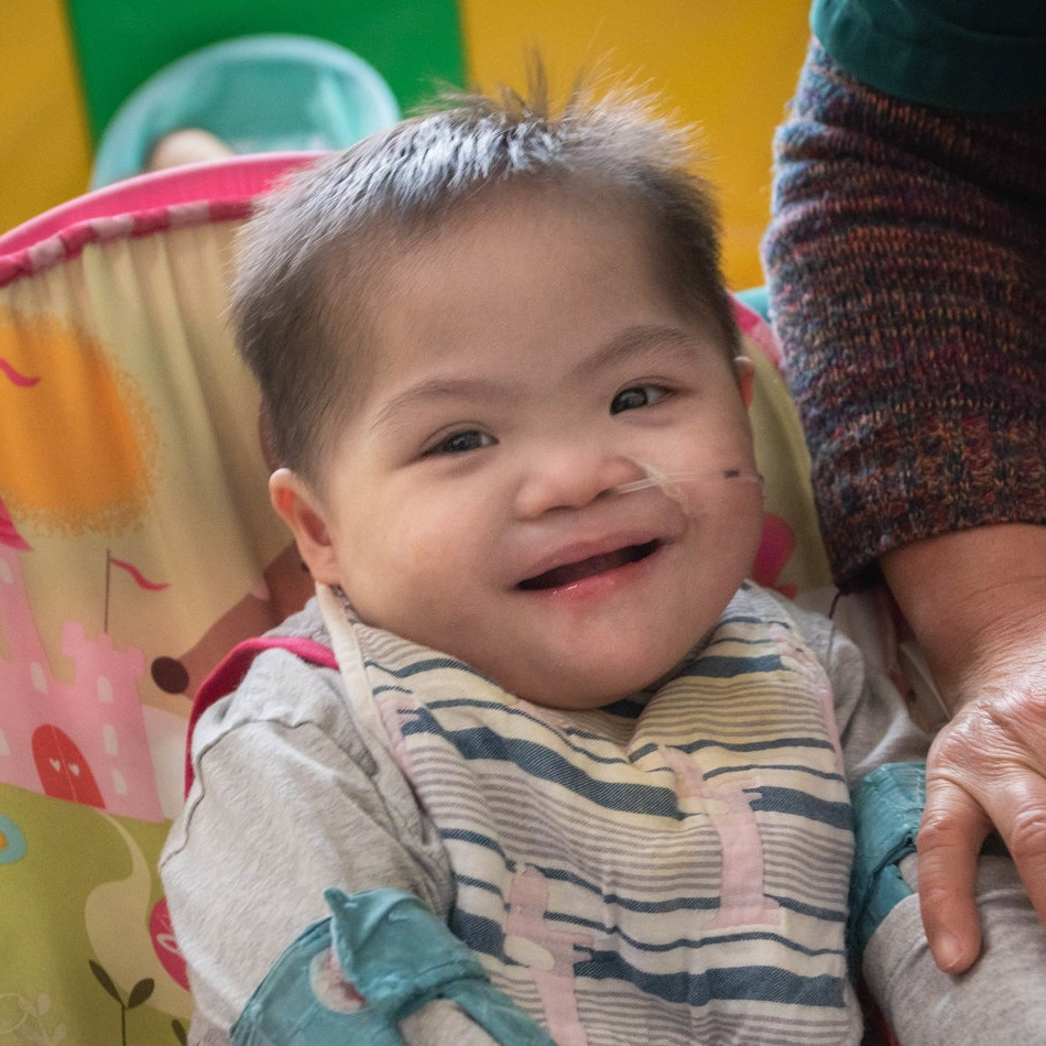 HUA YZ   Medical Condition: Down syndrome, heart deformity, anal atresia