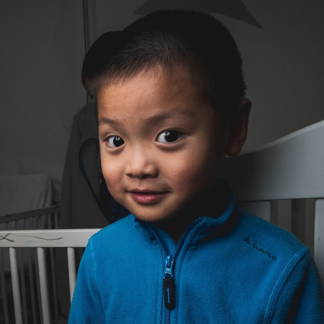 ZHAO YB   Medical Condition: Cataract & Autism