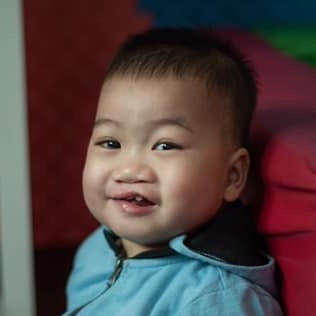GAO FH  Medical condition: Cleft lip and palate