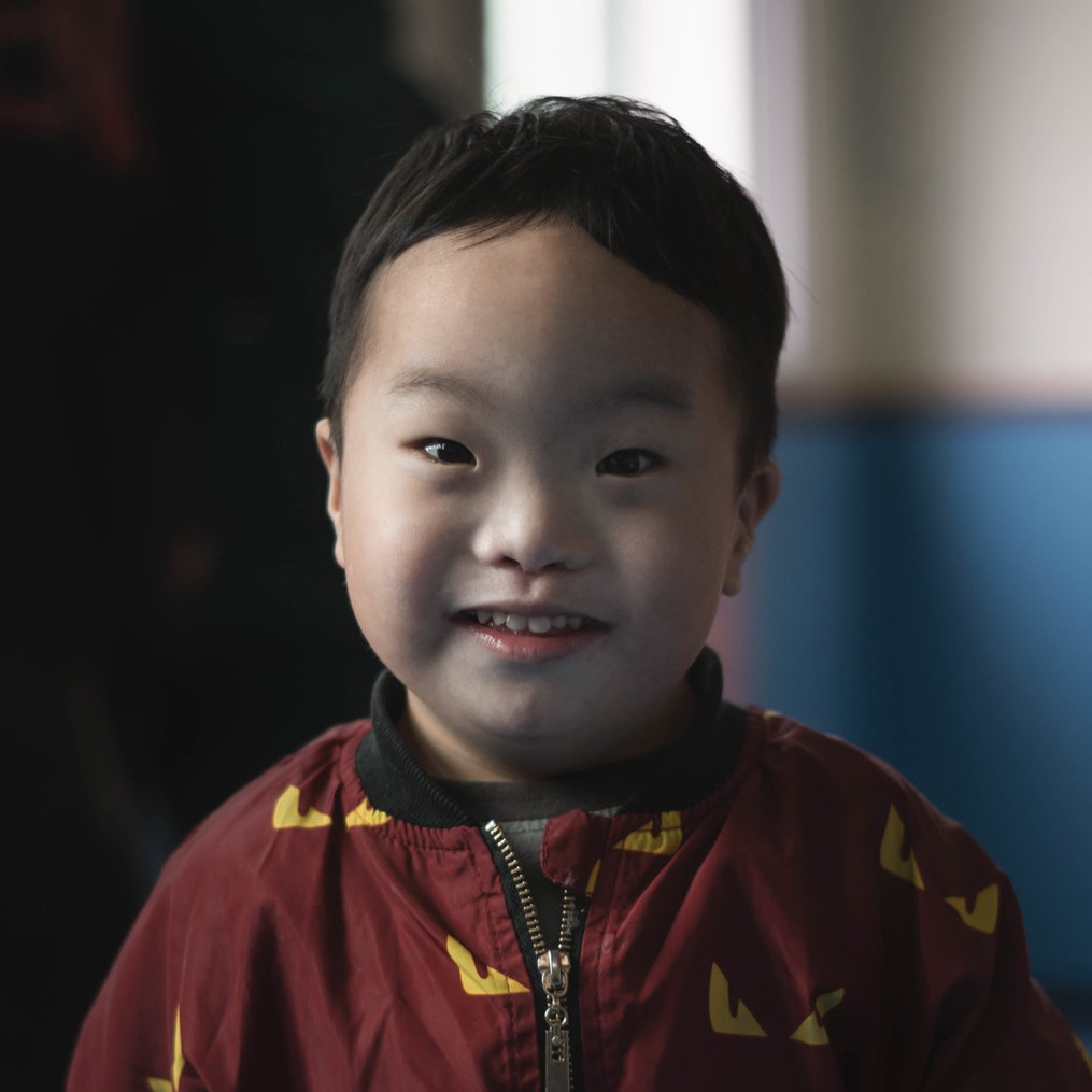 ZHAO YW  Medical Condition: Down Syndrome