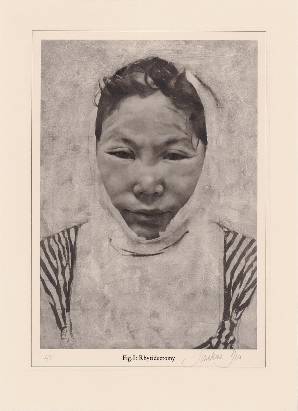 jonathan-yeo-rhytidectomy.jpg
