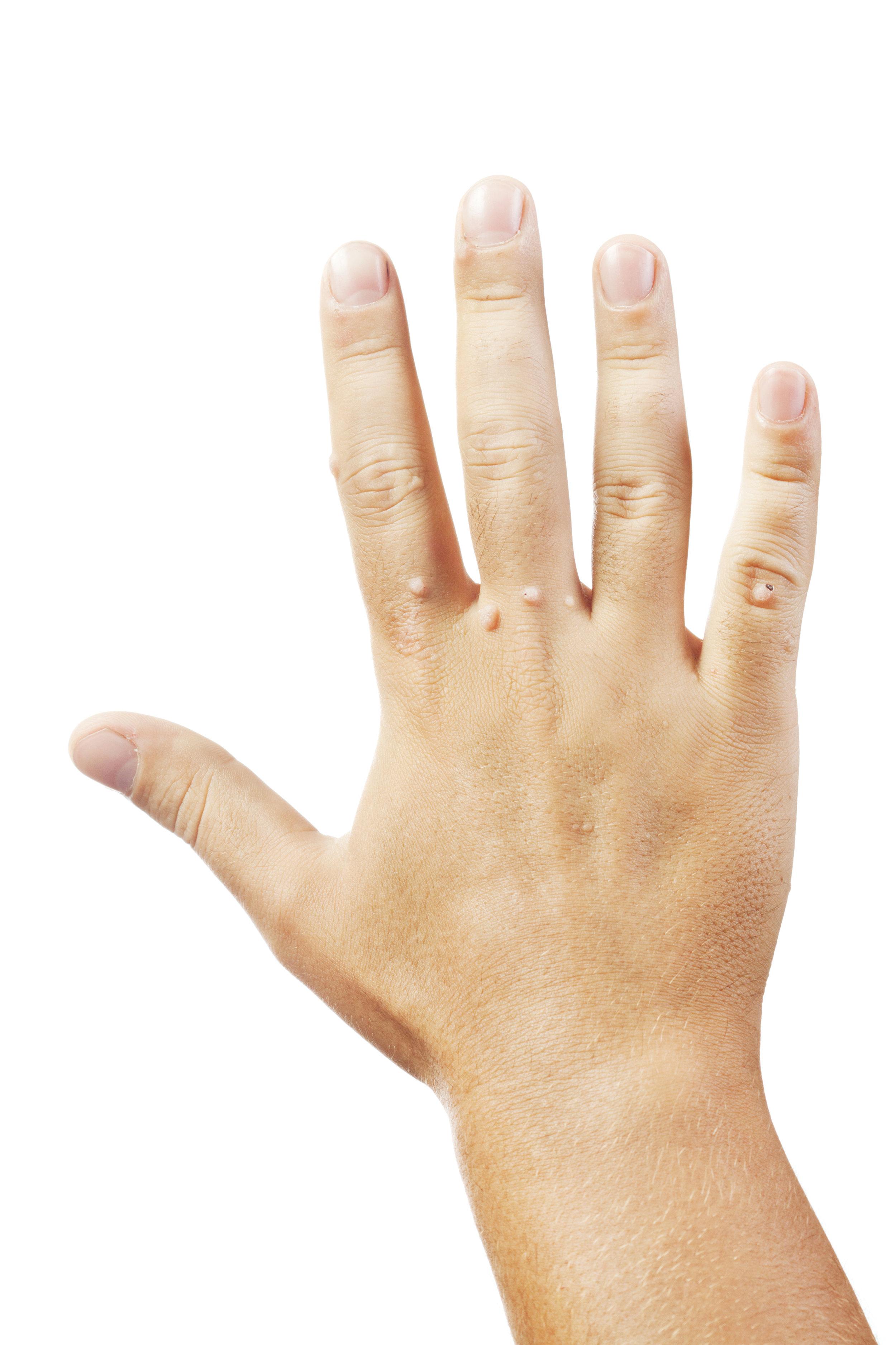 wart-on-hands.jpg