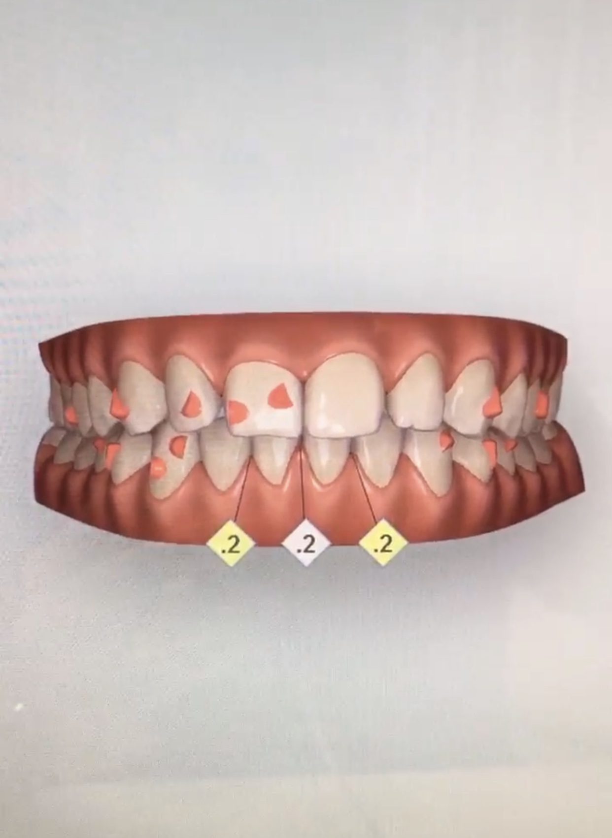lineberger orthodontists