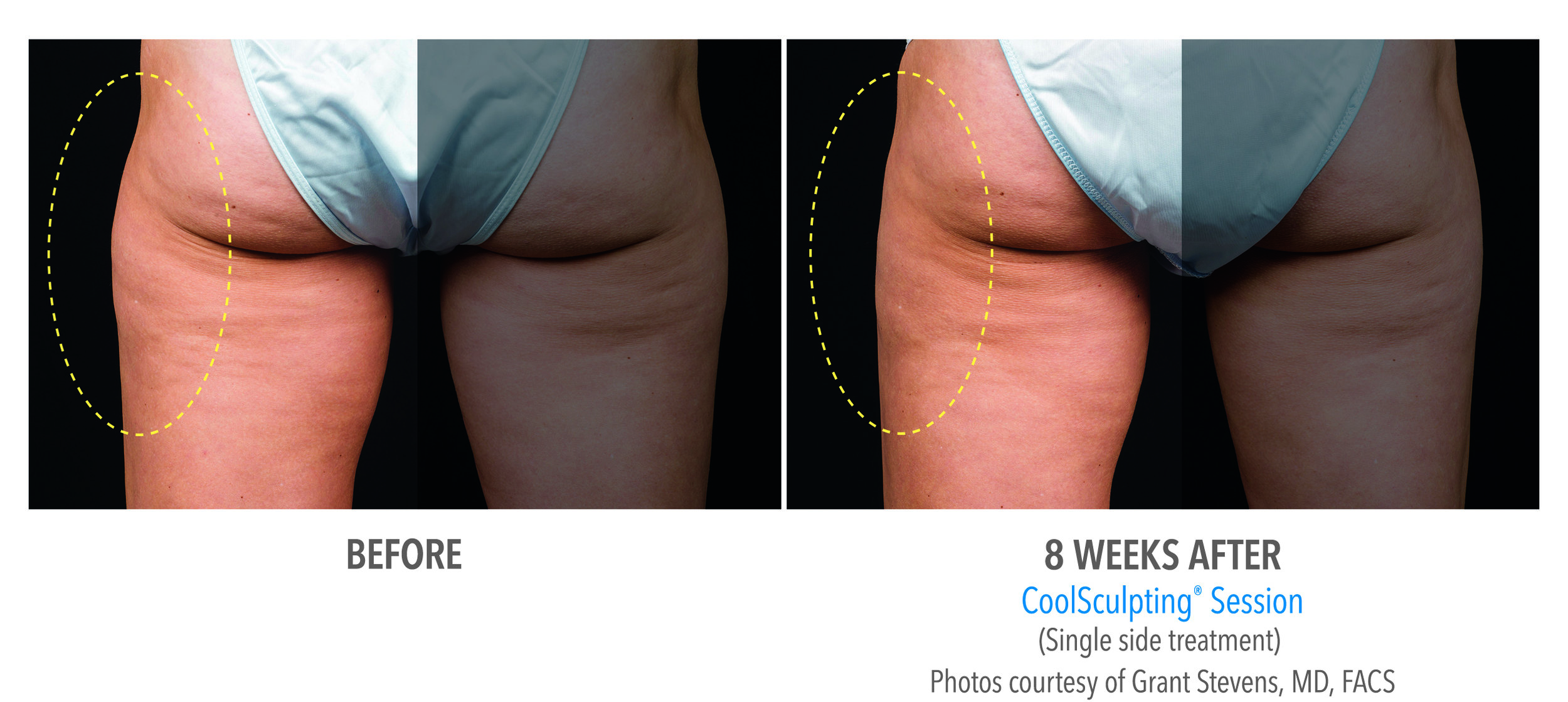 coolsculpting outer thigh.jpg