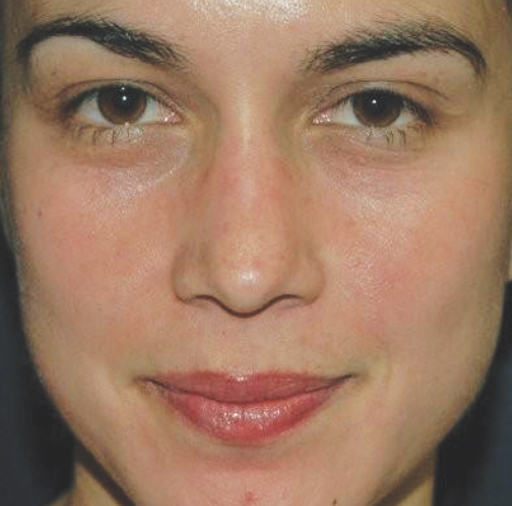 Pigmentation-Volleyball-player copy AFTER.jpg