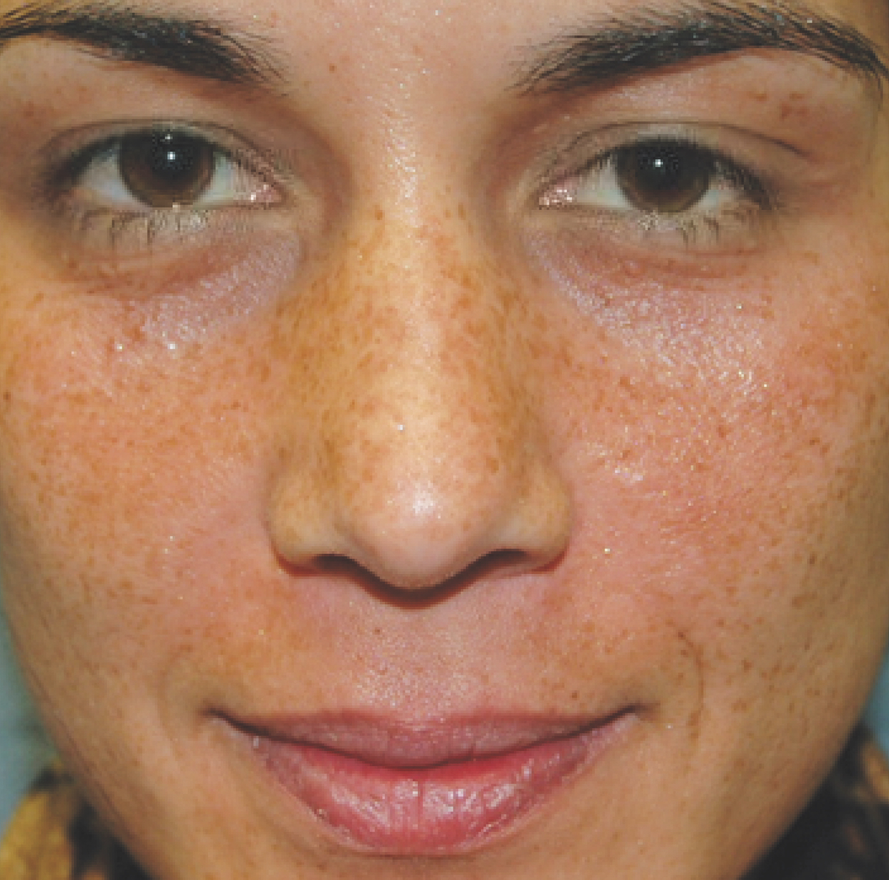 Pigmentation-Volleyball-player copy 2 BEFORE.jpg