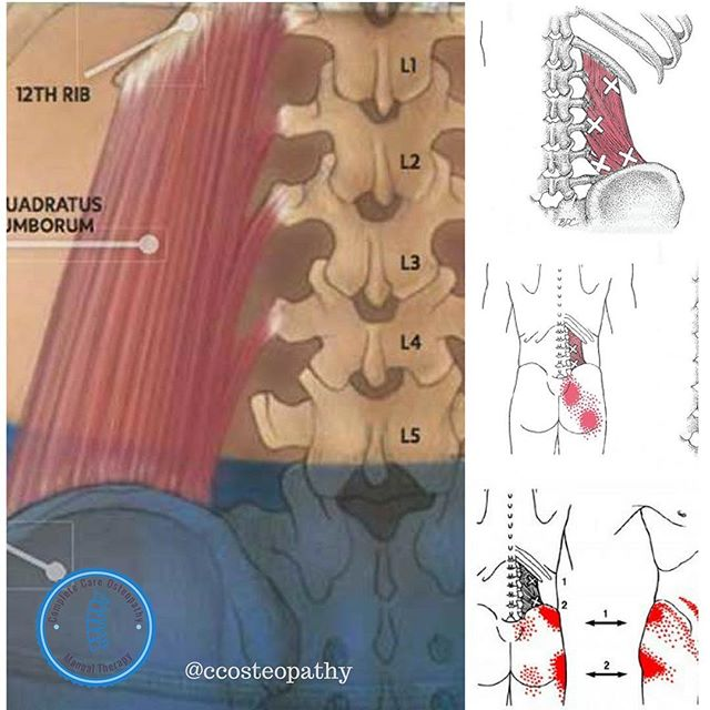 QUADRATUS LUMBORUM MUSCLE (QL)  The QL is a muscle that often need to be checked out specially for those who suffer low back pain.  This muscle contributes to the stabilization and movement of the spine and pelvis.  How do I know if my QL is tight? ▪️Pain over time develops in what it seems like sciatica. ▪️When coughing or sneezing it can be painful. ▪️Rolling from one side to another after laying face up for some time is extremely painful.  #manualosteopathy #manualosteopaths #bjj #genesismartialarts #nationalacademyofosteopathy #nationaluniversityofmedicalsciences