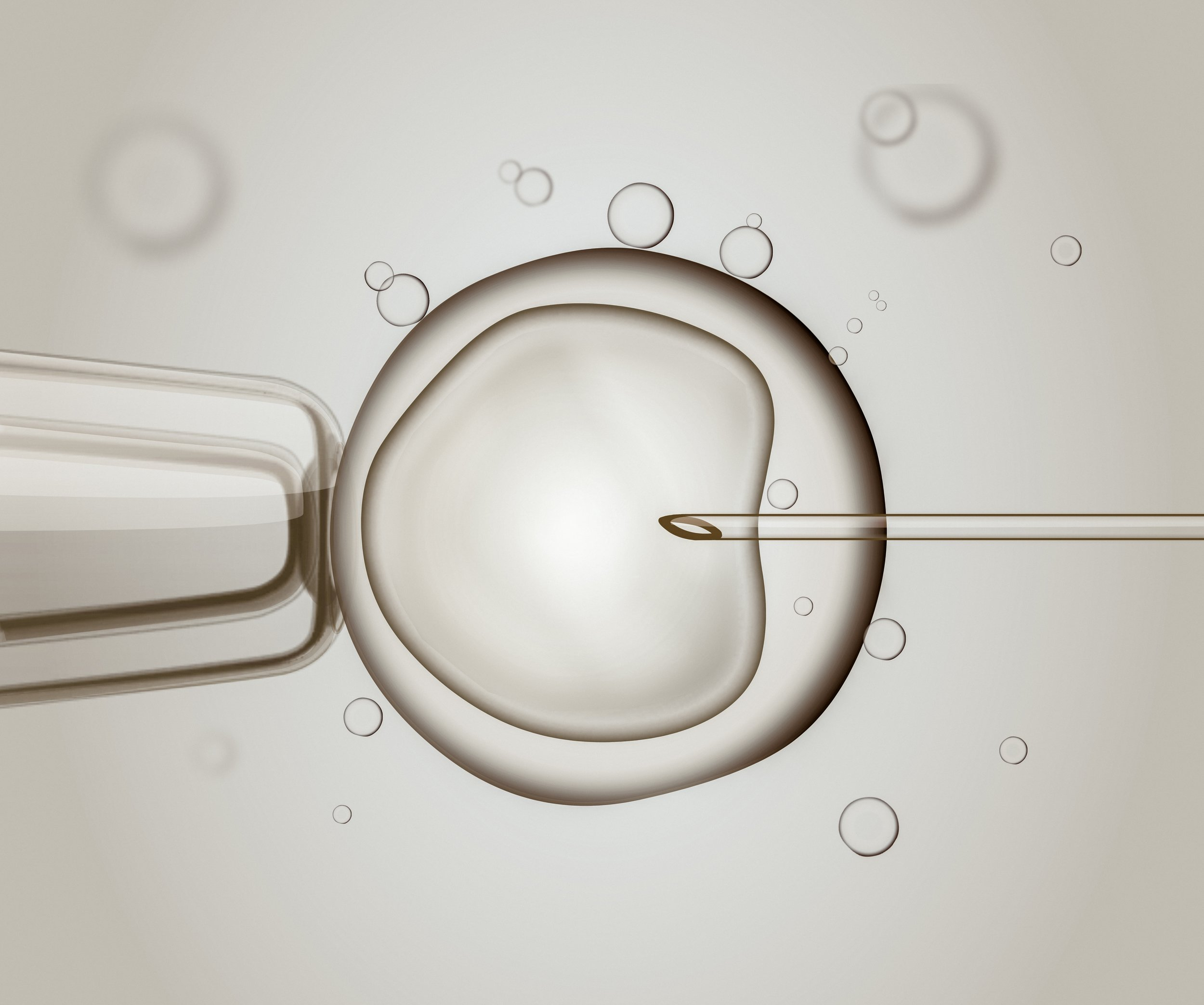 ACUPUNCTURE FOR ASSISTED CONCEPTION