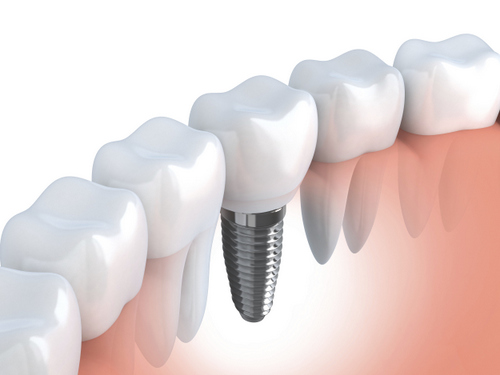 Dental-Implant-Model-Implant-Post-with-Gums.jpg