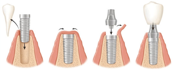 costa-rica-dental-implants-steps.jpg