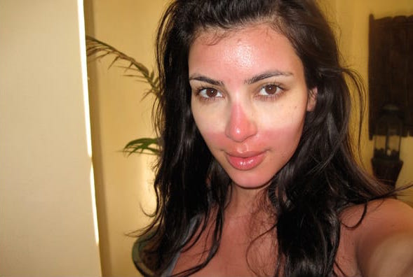 Kim needs some aloe STAT!