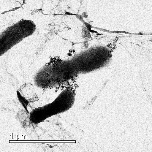 TEM image of  E. coli  bacteria cell with silver and titanium dioxide nanoparticles. Copyright Gray Research Group. All rights reserved.