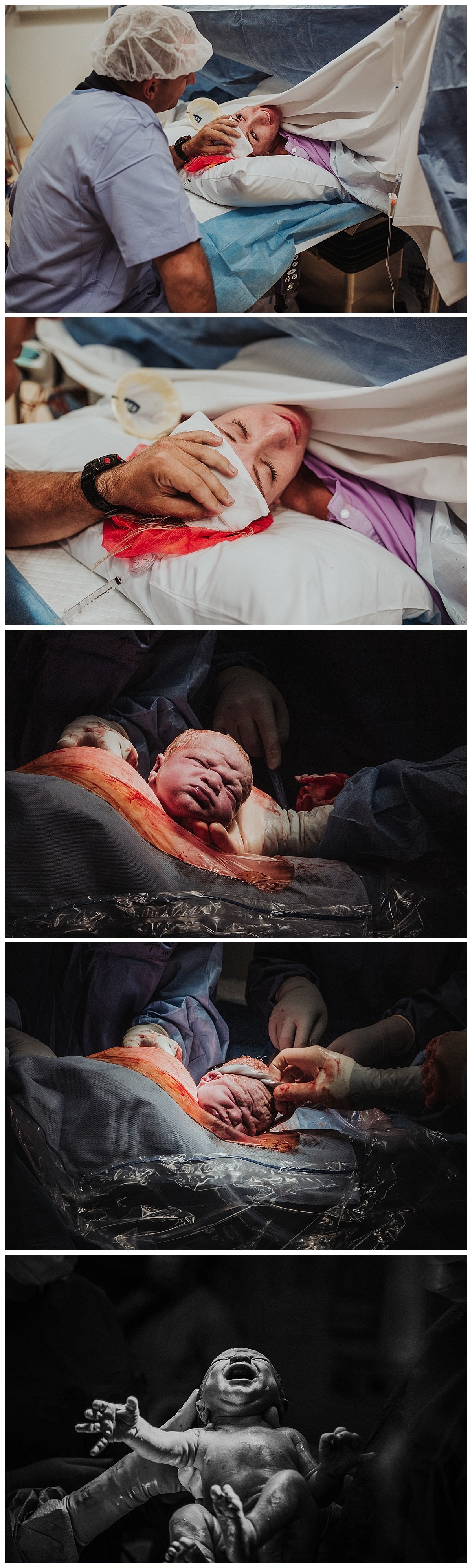 C-Section-Cesar-Cesarean-Section-Birth-couple-OR-Theatre-Photography.jpg