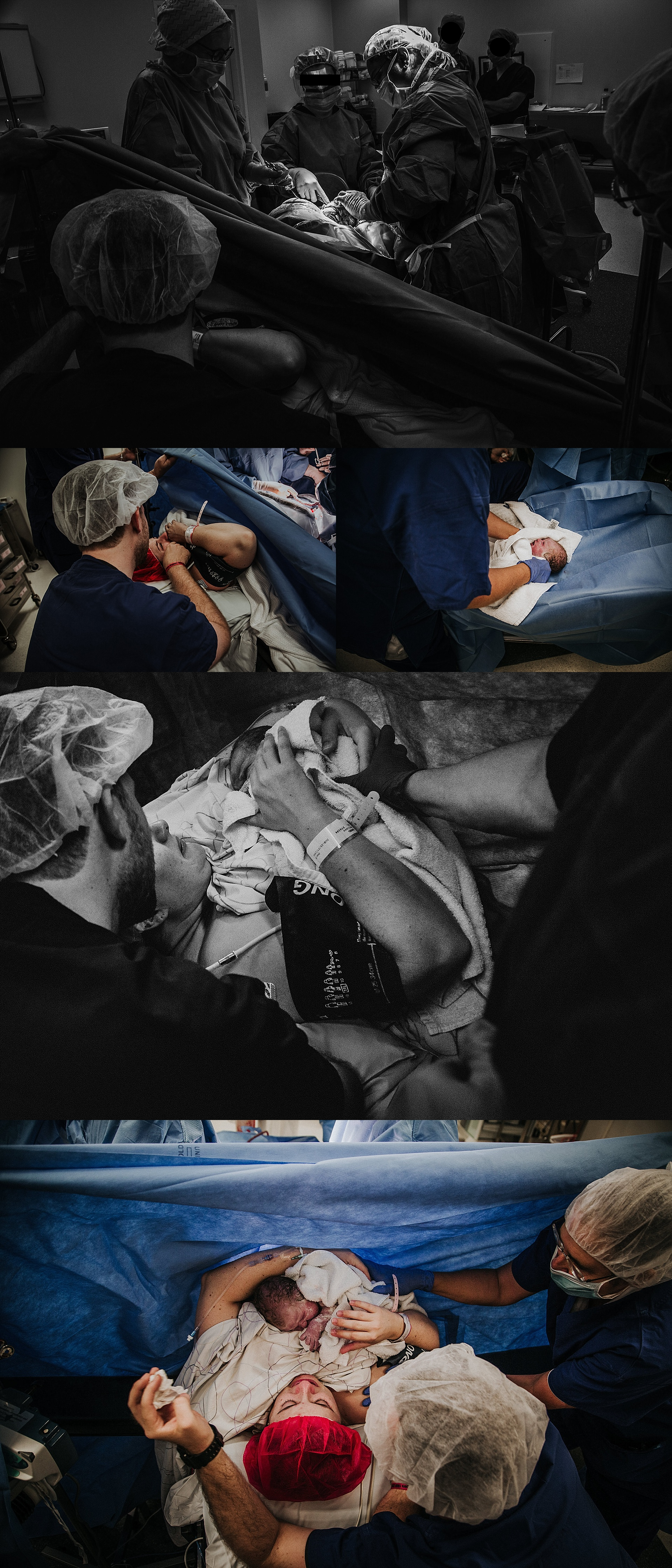 moment-of-birth-cesarean-section-operating-theatre