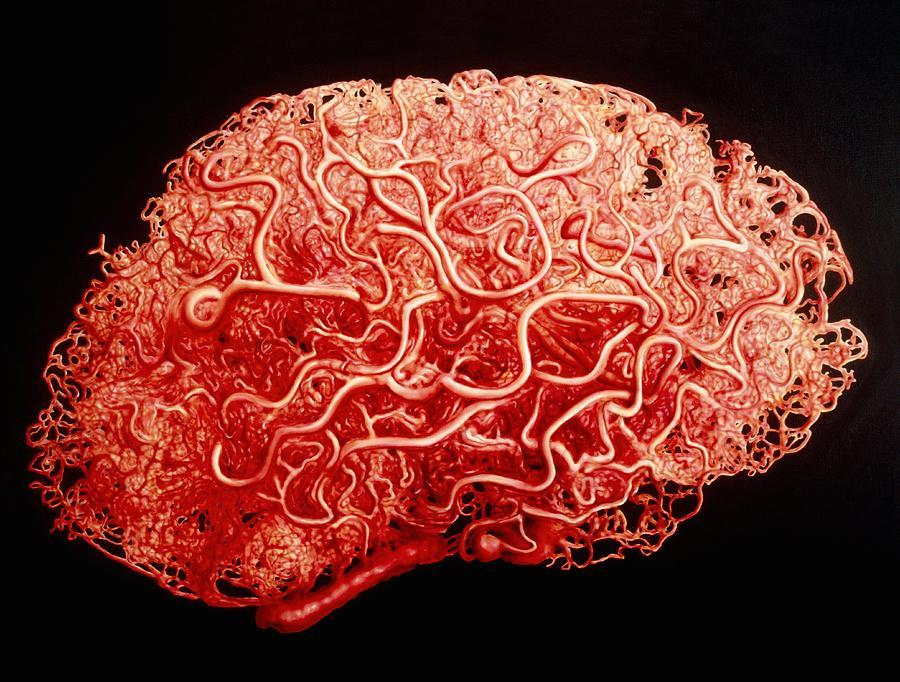 blood-vessels.jpg