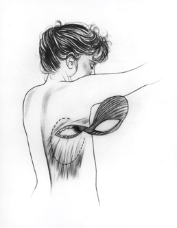 Breast reconstruction using the latissimus dorsi muscle (LDF reconstruction).