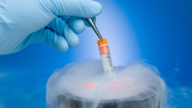 egg freezing procedure pic 2