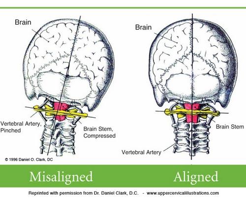 neck pain headaches