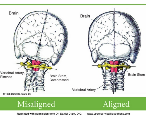 neck+pain+headaches.jpeg