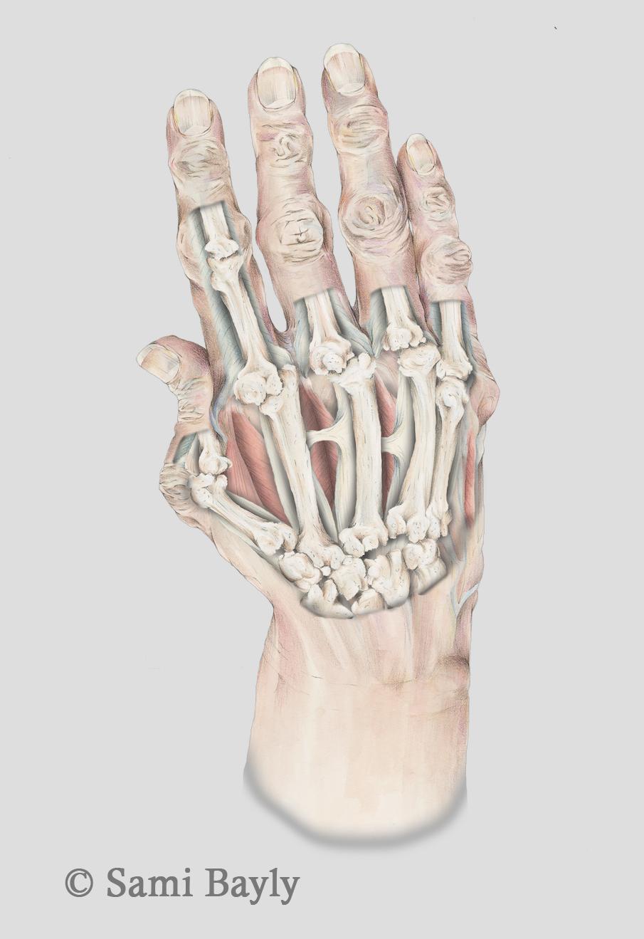 X-ray Arthritic Hand