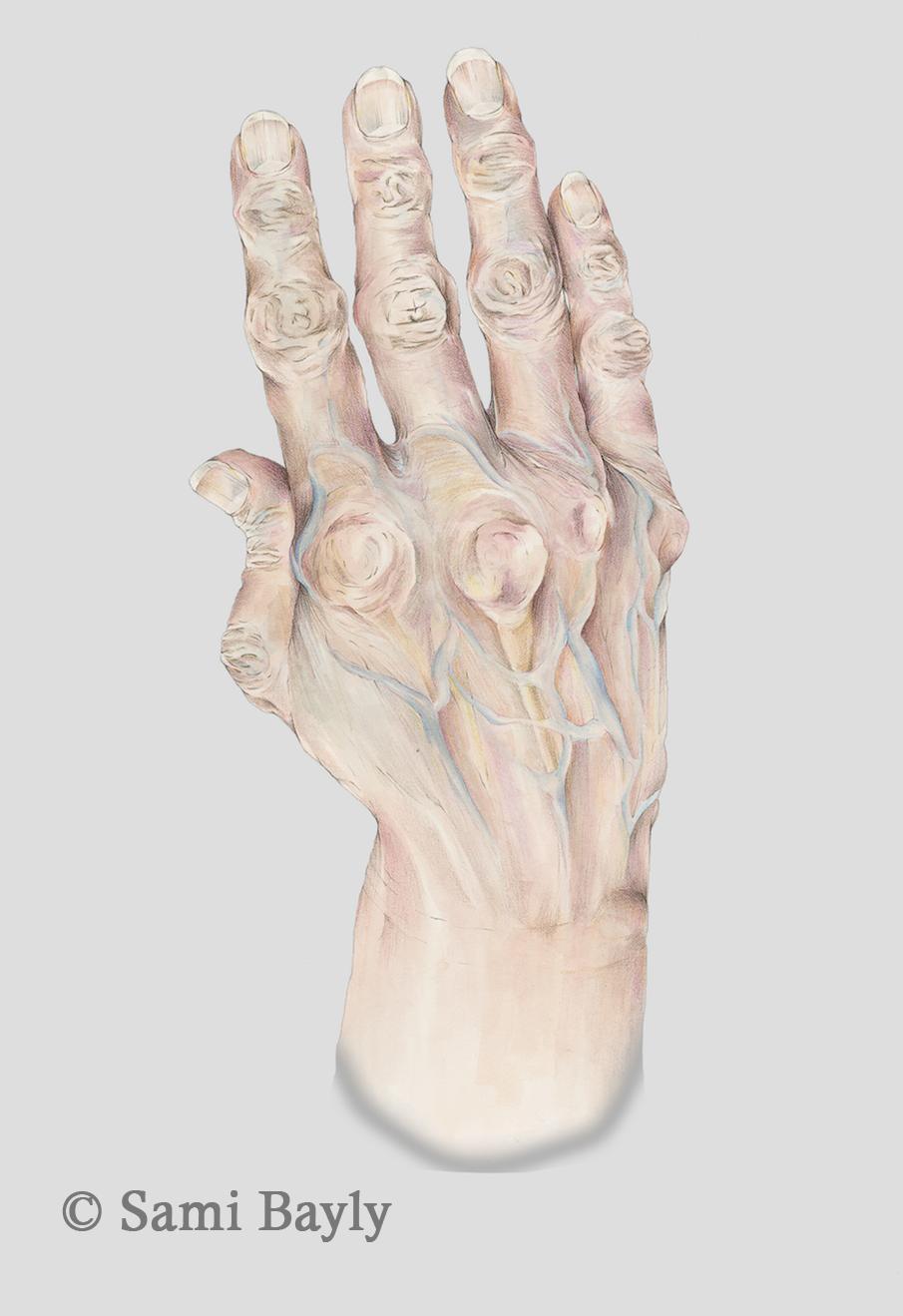 Arthritic Hand