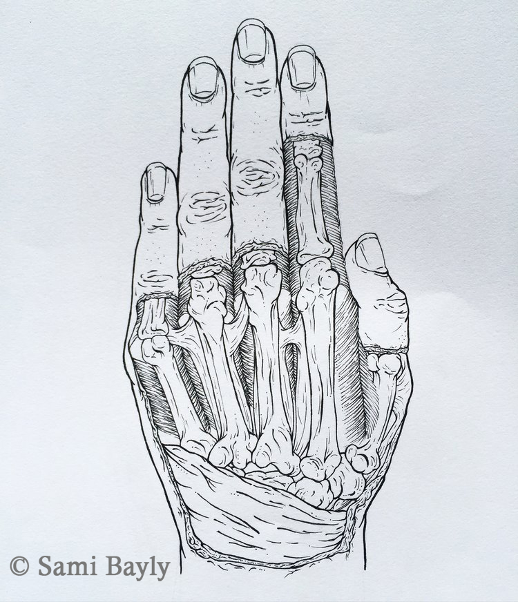 X-ray Line Hand