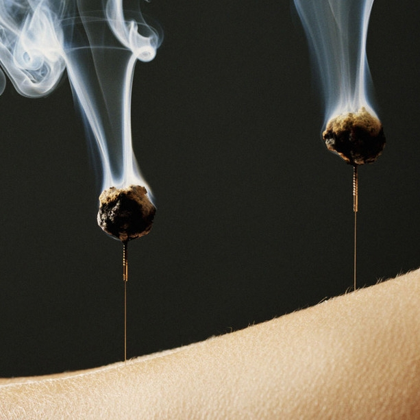 The-Origin-of-Acupuncture-and-Moxibustion.jpg