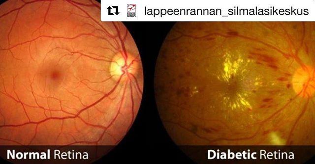 Tällä viikolla vietettiin kansainvälistä Diabetes-päivää! Diabetes vaikuttaa myös silmien toimintaan ja siksi silmänpohjamuutoksien seuranta on tärkeää. Silmänpohjamuutoksia voidaan hoitaa, kun ne havaitaan ajoissa. #silmäpohjankuvaus #optikko #optometristi #verkkokalvo #retinopatia #huolehdiitsestäsi #näköasiantuntija #näköasia