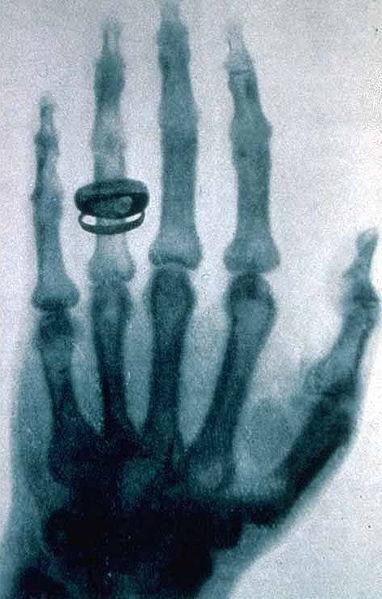 Röntgenaufnahme:Albert von Koellikers Hand, aufgenommen von Conrad Röntgen am 23. Januar 1896 (wikimedia)