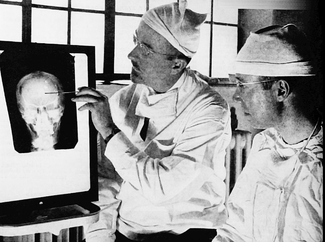 Walter Freeman and James Watts study an X-ray before a lobotomy ( Saturday Evening Post , 1941)