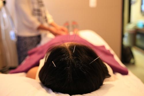 acupuncture boston