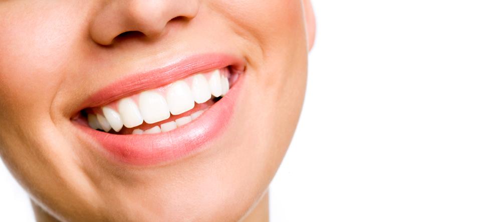 Bright-White-Smile.jpg