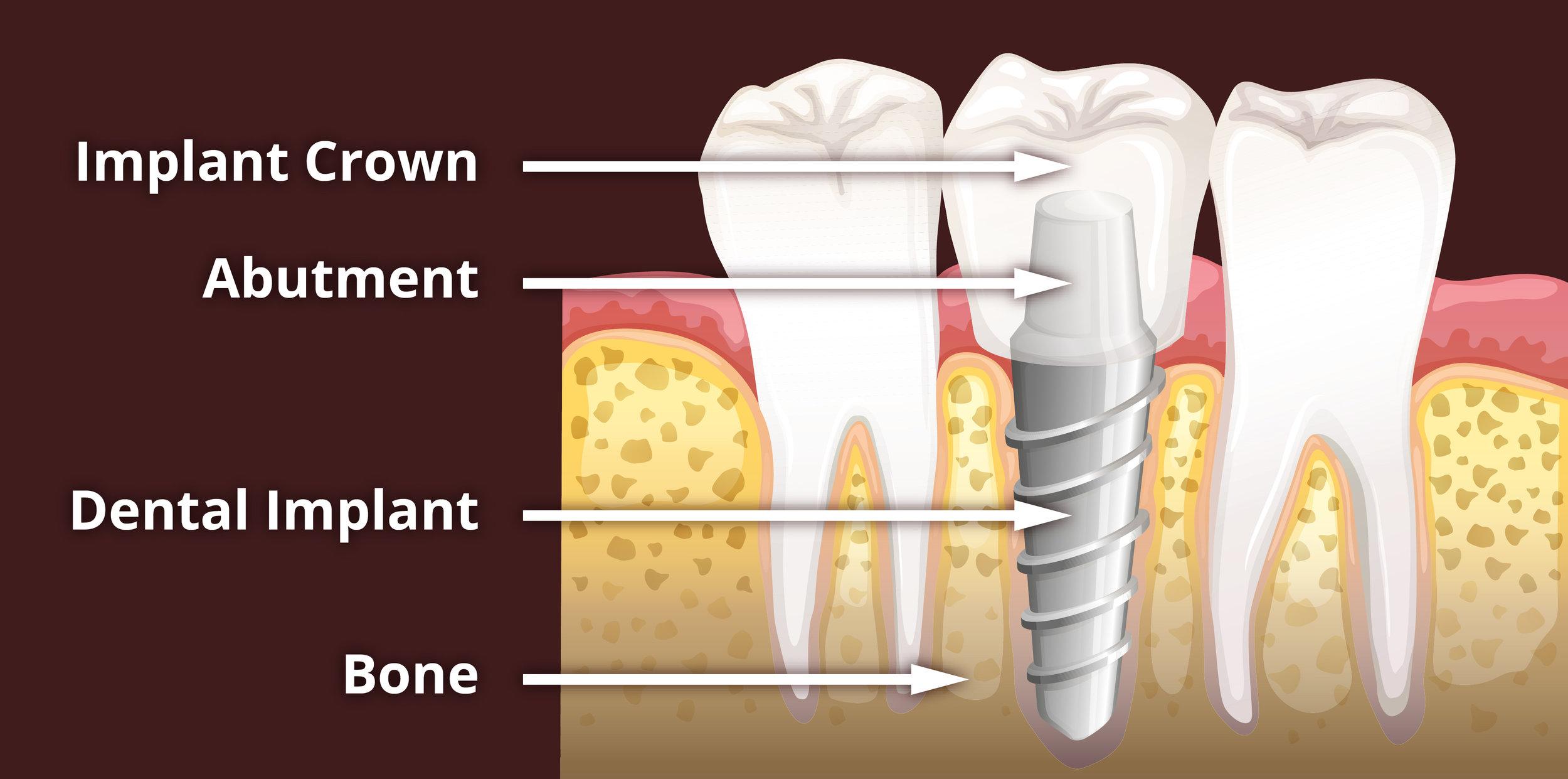 Dental-Implant-Anatomy-01.jpg