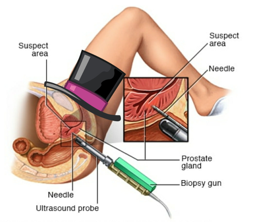Diagram of Biopsy.png