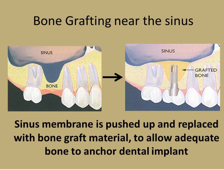 Bone Grafting Near the Sinus Membrane. Allows the bone to anchor the dental implant.