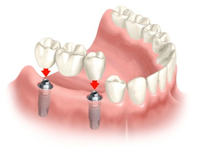 Picture of implants and dental restoration.