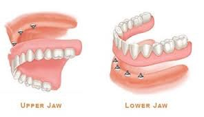 Picture of Hybrid Dentures