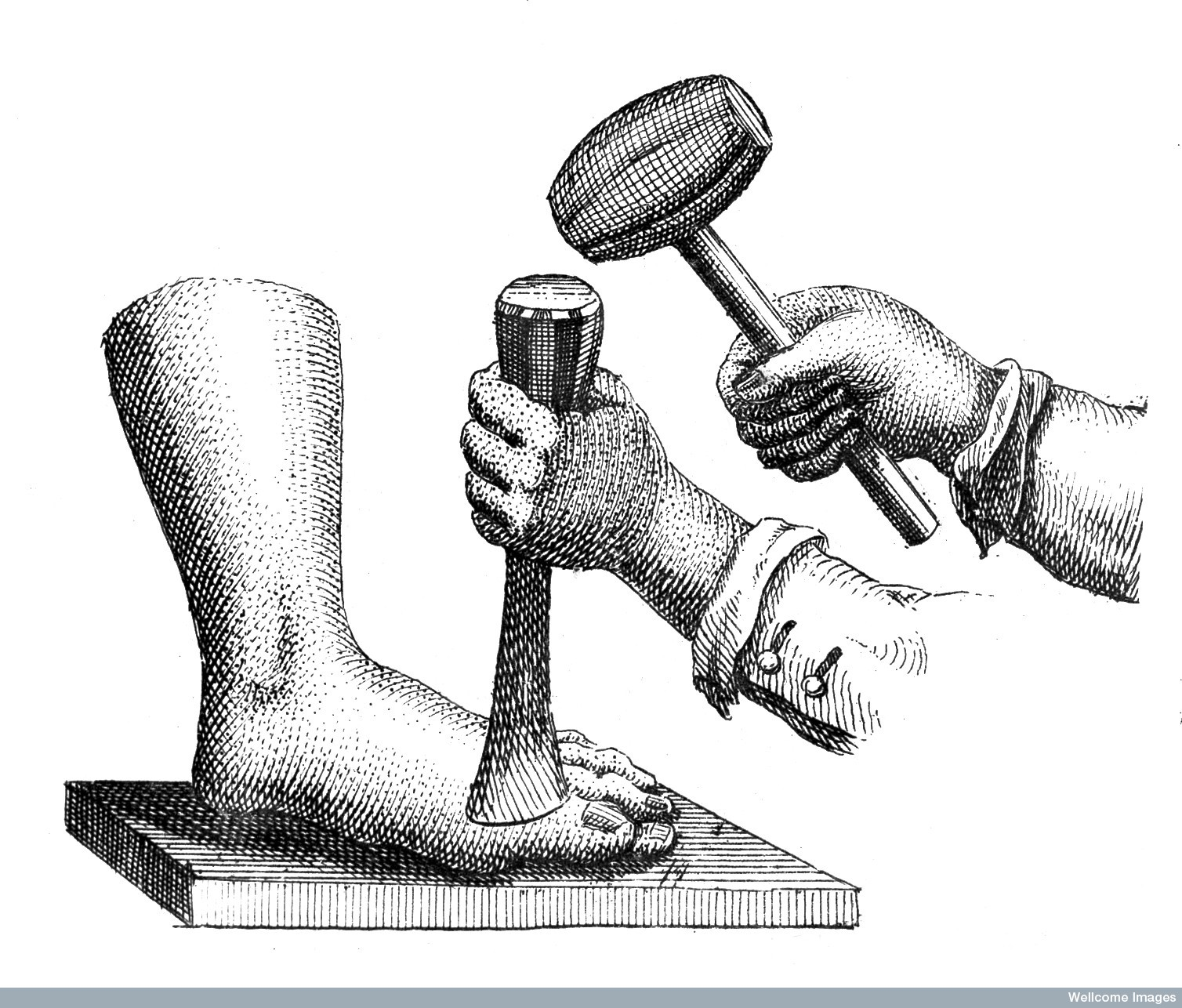 Figure 17 - Shews the method of amputationg the great toe with mallet and chistel, used by Roonhuyse. Signature in corner of Tabula XXXIII : R. Parr.  1743-1745        From:   A medicinal dictionary   By  James, Robert.    Wellcome Images L0009863