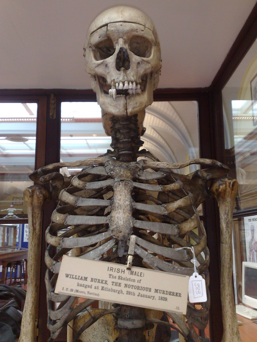The Skeleton of William Burke