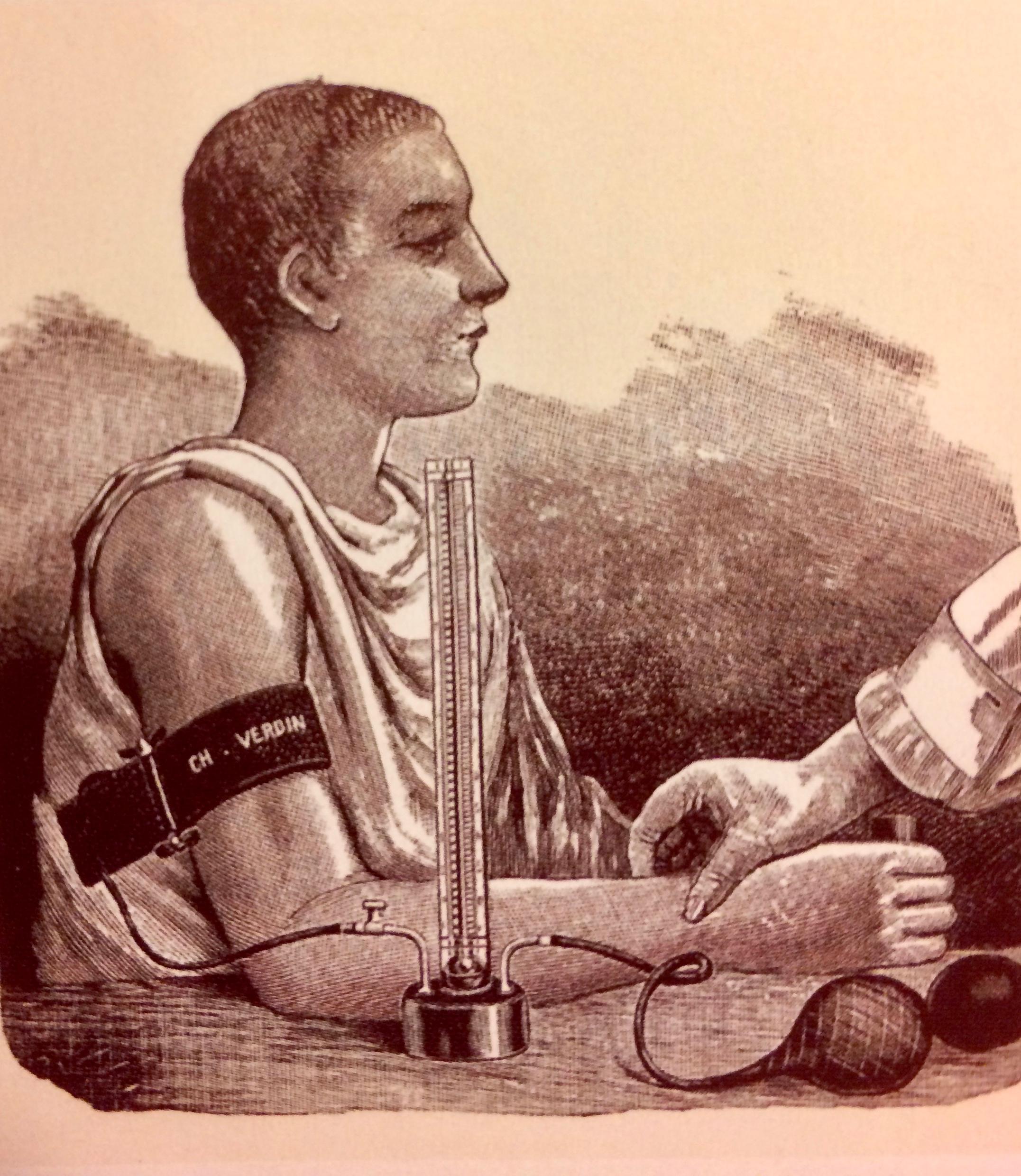 """Riva-Rocci (RR) het den italienske legen som for ca 100 år siden fant opp den morderne måten å måle blodtrykket på, med oppblåsbar mansjett rundt overarmen.Korotkoff het den russiske legen som forbedret RR metoden slik at man målte både et systolisk (overtrykk) og et diastolisk trykk (undertrykk). - Bilde fra """"Druckpunkt 1, 2018"""""""