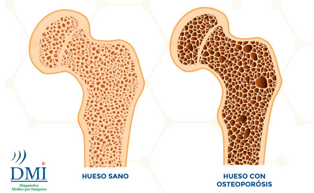 Osteoporósis - Estudio de Densitometría Ósea
