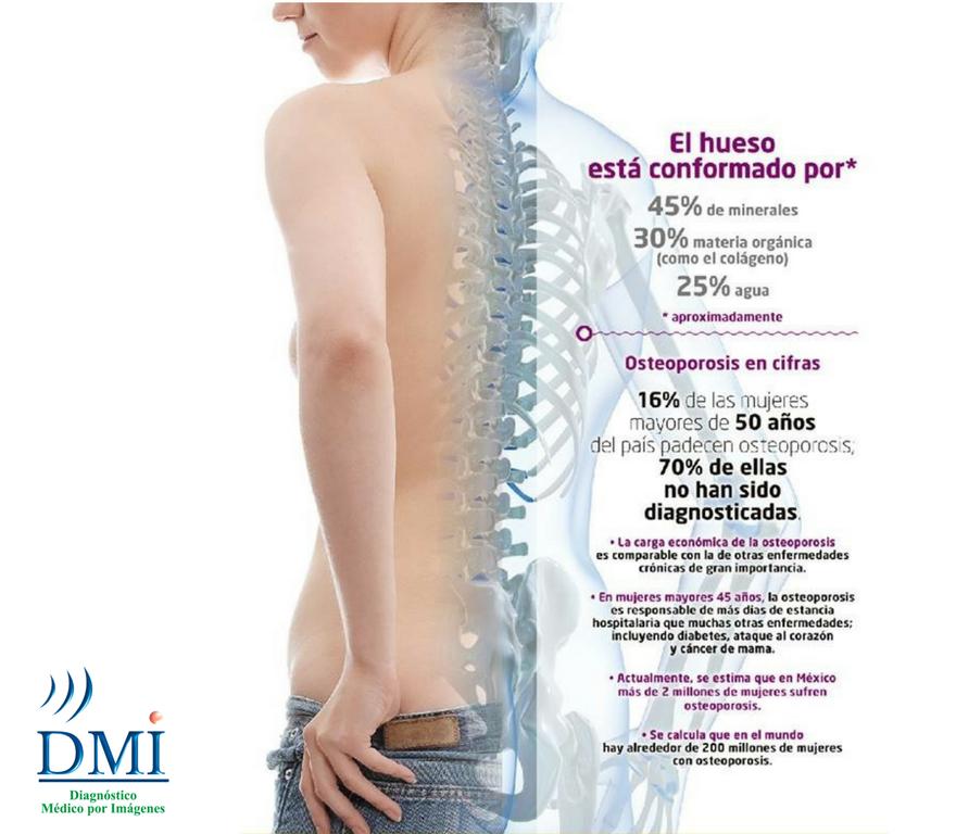 DMI-Osteoporosis en cifras.png