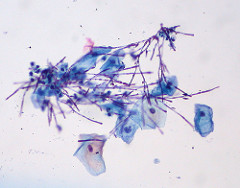 Candida, Liquid-based Pap  (Photo credit:  euthman )