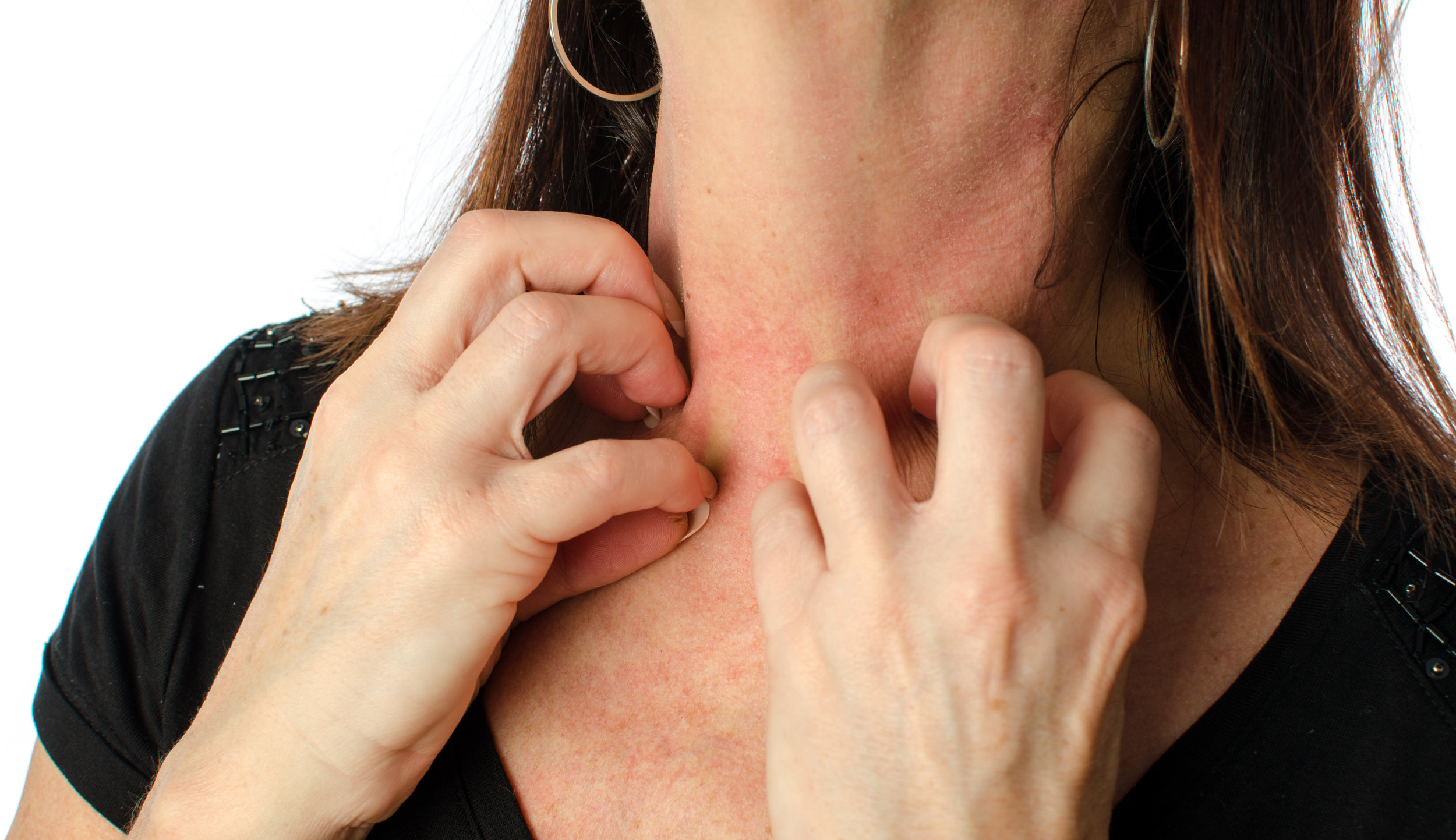 Ayurvedic Treatment_Skin Inflammation.jpg