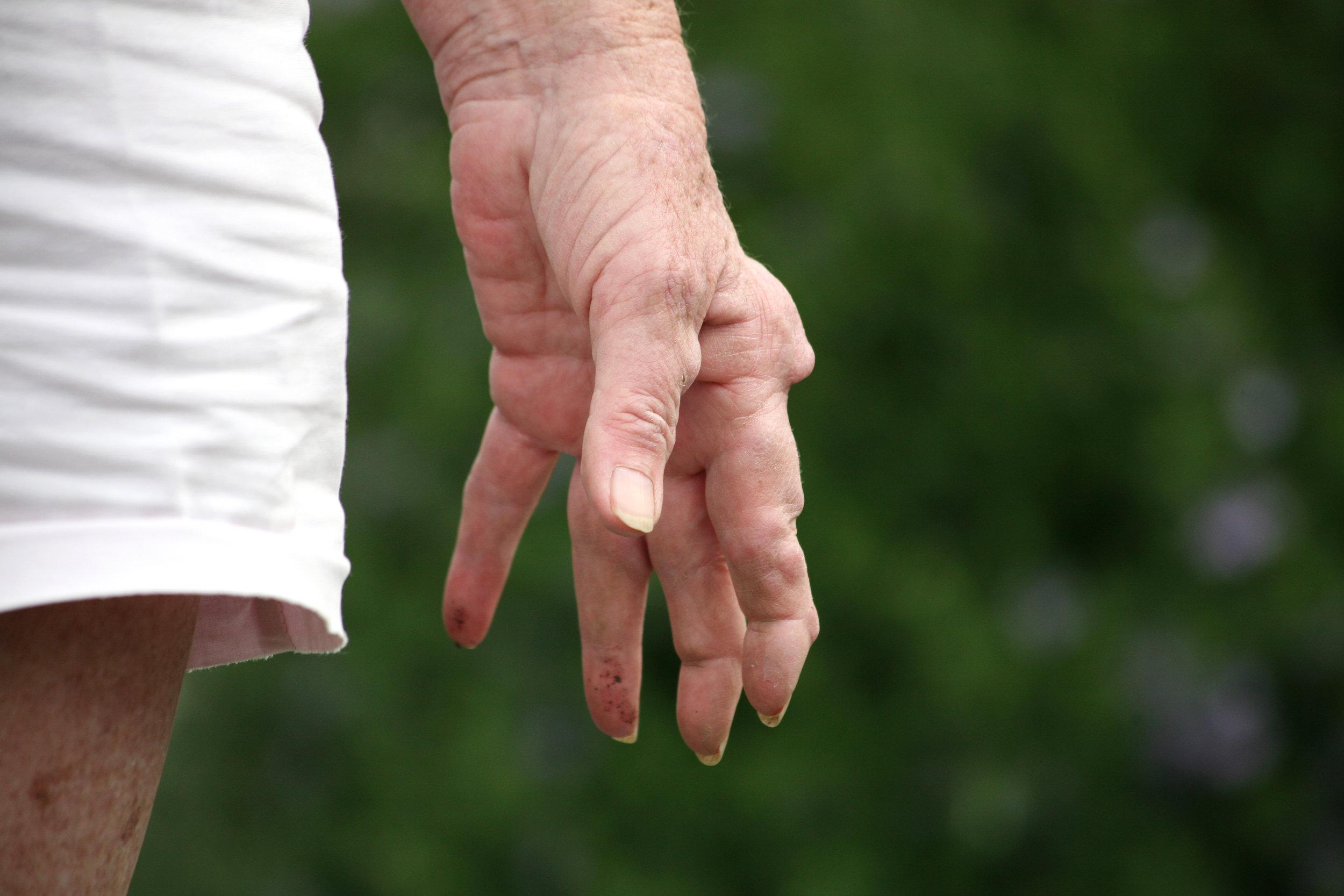 Ayurvedic Treatment_Arthritis.jpg