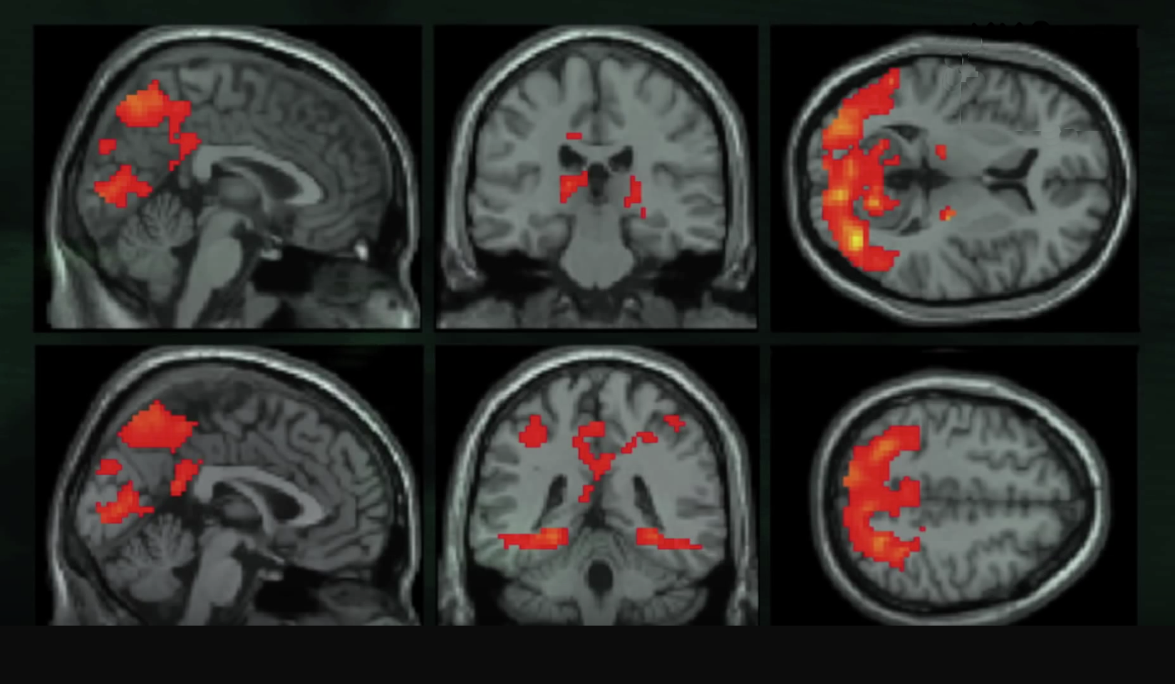 In Paul Zak's studies, functional brain imaging showed stimulation in areas related to understanding and empathy when participants viewed a story with a dramatic arc, as opposed to a straightforward reporting of events. Understanding and empathy engaged them in the story and motivated them to act.